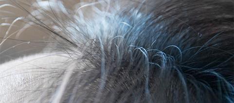 头发什么时候开始变细了,实验结果让人大吃一惊--高缇雅洗发水加工厂家